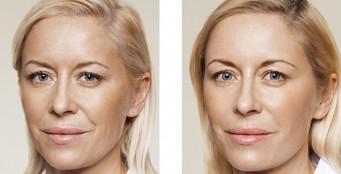 Инъекции молодости Skinbooster Restylane Vital - три процедуры по цене 2-х