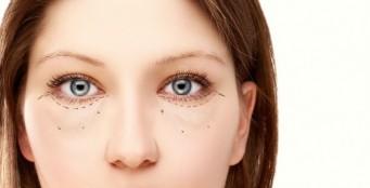 Коррекция носослёзной борозды филлером