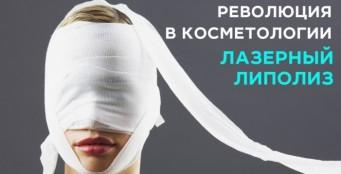 РЕВОЛЮЦИЯ в косметологии! Лазерный липолиз на аппарате Accusculpt