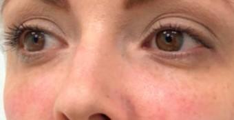 Кожа вокруг глаз - коррекция филлерами