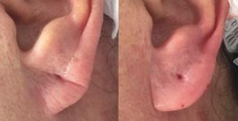 Коррекция мочки уха!