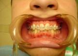 На этапе ортодонтического лечения